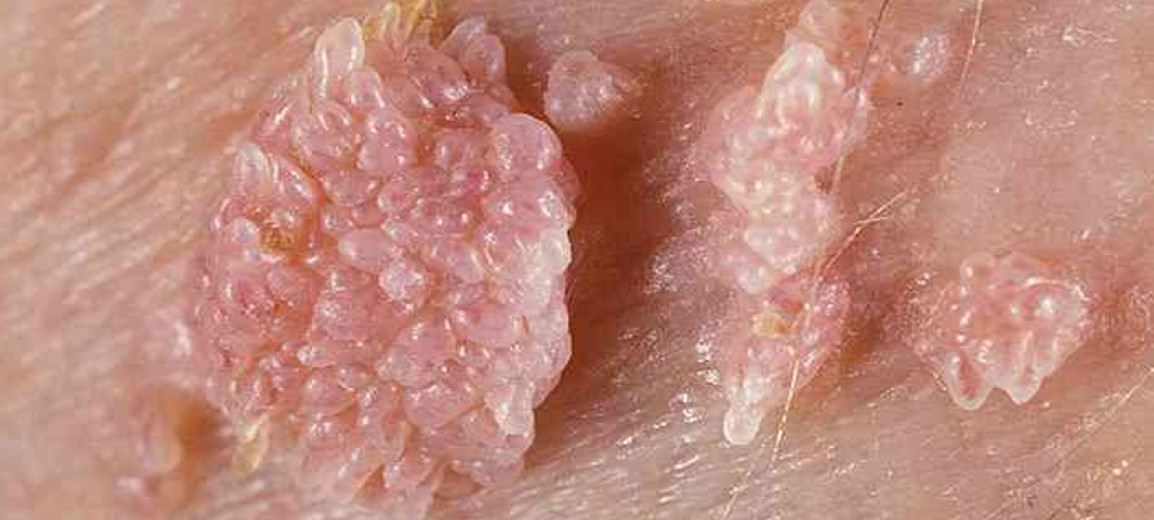 Ιός των ανθρωπίνων θηλωμάτων (HPV) και καρκίνος του τραχήλου της μήτρας