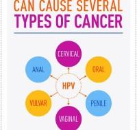 NCI: ΚΑΡΚΙΝΟΙ ΠΟΥ ΠΡΟΚΑΛΟΥΝΤΑΙ ΑΠΟ HPV ΛΟΙΜΩΞΗ